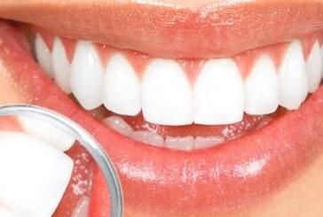 Evinizde nasıl diş beyazlatılır?